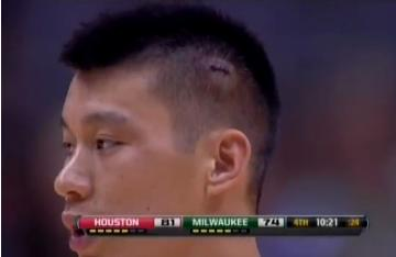 Jeremy Lin returns to Bucks game with 5 stitches