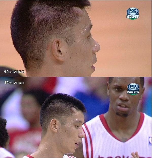 Jeremy Lin elbowed, gets huge bump on head
