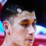 Jeremy Lin welt after Kevin Love elbow