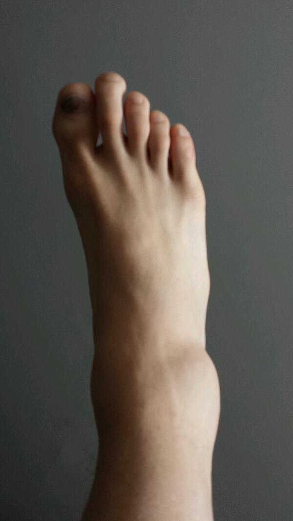 The Immaculate Ankle Sprain