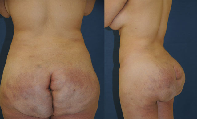 Ass enhancement surgery can go bad